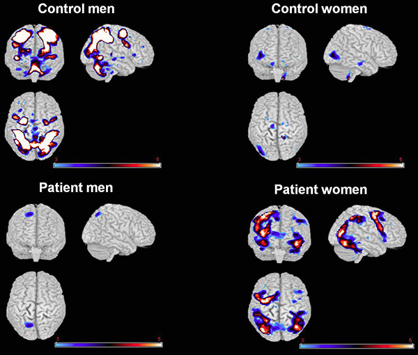 Functional magnetic resonance imaging of brain activity